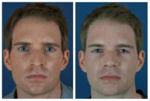 male-rhinoplasty-charlotte