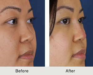 Non-Surgical Rhinoplasty in Charlotte