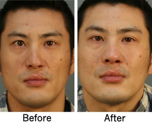 Asian Rhinoplasty Charlotte